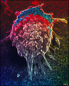 Cell from a lung cancer