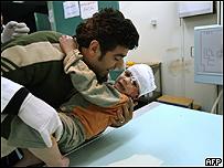 Un niño palestino y su padre buscan atención médica en Gaza