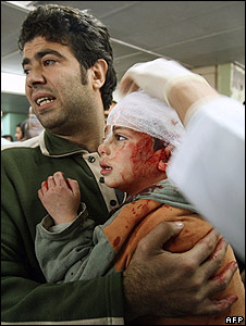 Wounded boy, hospital in Gaza City (28.12.08)