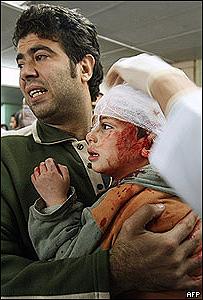 Niño palestino en un hospital de Gaza