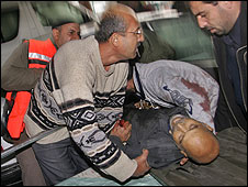 Injured Palestinian in Gaza