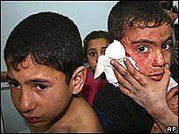 Ni�os en Gaza, atemorizados y heridos durante los bombardeos