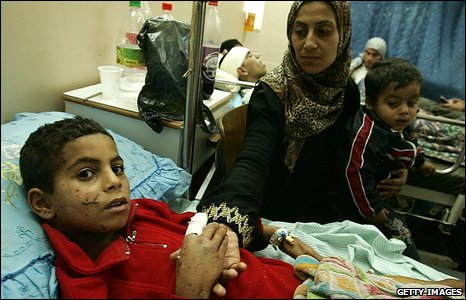 An injured Palestinian boy in Shifa Hospital, Gaza City