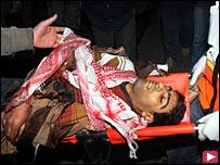 مصاب فلسطيني