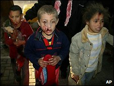 Wounded Palestinian children in Gaza at Shifa hospital in Gaza City - 5/1/2009
