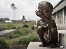 A malnourished boy at a feeding center in southern Ethiopia in June 2008
