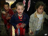 Niños palestinos heridos, en un hospital