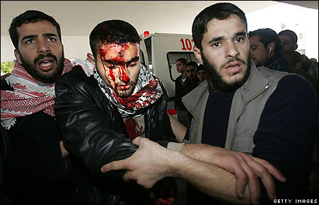 A wounded man is helped in Gaza City