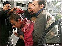 Palestino herido en Gaza