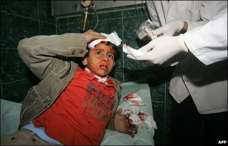 A wounded Palestinian boy is treated by medics at a Gaza City hospital after Israeli strikes on 10 January 2009