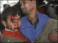 Niño palestino herido en la operación militar israelí en Gaza, este sábado