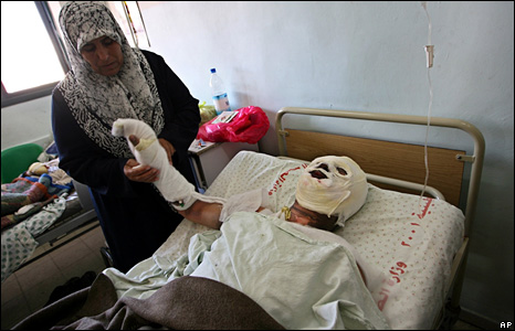 Akram Abu Rukaa is treated for suspected phosphorus burns at the Nasser Hospital in Khan Yunis.