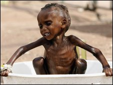 A severely malnourished and dehydrated child during kenya's 2006 drought