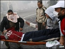 A Palestinian youth is carried on a stretcher after an Israeli attack in Gaza City