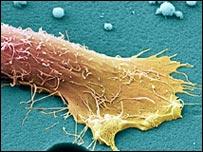 Célula cancerosa de próstata