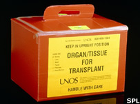 Organ transfer box