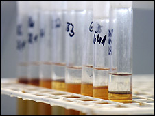 Test tubes at an anti-doping laboratory