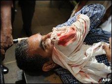 Assaulted Sri Lankan editor Upali Tennakoon
