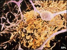 Nerve cells in MS