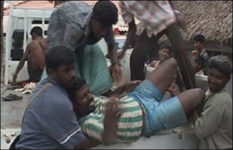 Injured Tamil civilian