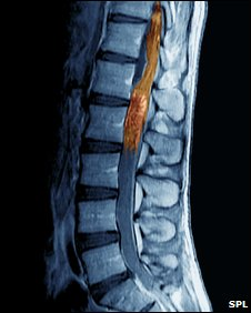 scan of spine with tumour