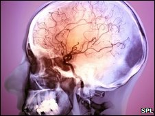 Brain of stroke patient