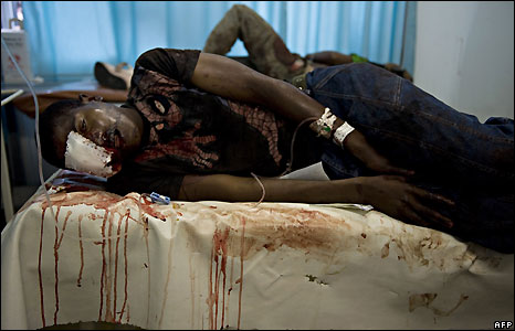 A wounded man lies in Antananarivo's general hospital