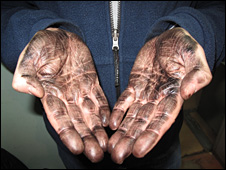 James Rodgers's hands after being finger-printed by Russian police