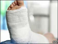 Plaster cast on leg