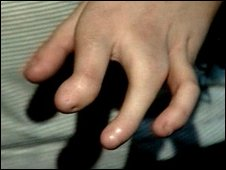 Child's deformed hands