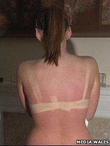 Girl, 14, burnt in tanning salon _45493026_7fdf124a-1c37-43b3-8d67-42532dcf1f0f