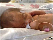 Isaiah, one of the octuplets (image from NBC News)