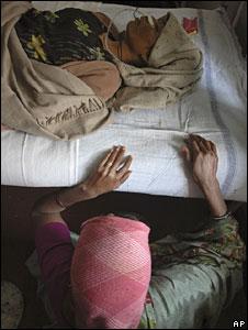 Hepatitis patient in Gujarat hospital