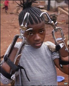 A young Sierra Leonean girl shows her artifical limbs