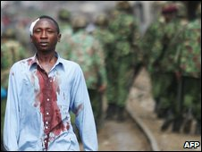 A man injured in clashes in Nairobi 29 January 2008
