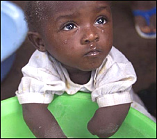 Sierra Leone child amputee