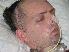 Paul McCauley after he was attacked in summer 2006