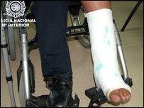 """Нога в кокаиновом """"гипсе"""" (фото испанской полиции )"""