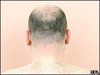 Man's neck
