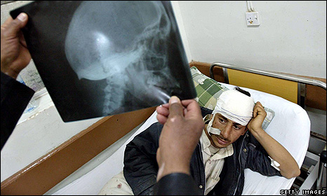 A relative looks at an X-ray of an injured Iraqi man at a hospital in the city of Hilla - March 2009