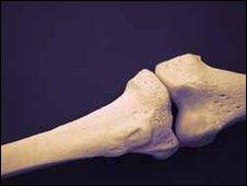 bones generic