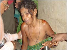 An injured woman in Orissa