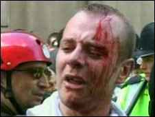 A bloodied protester 1 April 2009