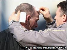 Referee Mike Dean receives treatment for his injury at Ninian Park