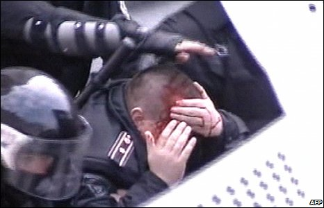 A still from Russian TV shows a Moldovan policeman clutching his bleeding head during protests at the parliament