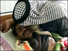 Emad Shanna, one of those injured by the suicide bomb at a hospital in Hilla.