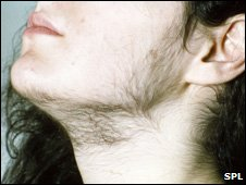 Woman with excess hair growth on her chin