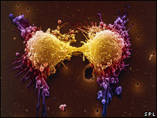 A prostate cancer cell dividing