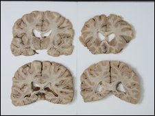 Cross-sections of brain in laboratory