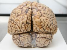 Brain in laboratory